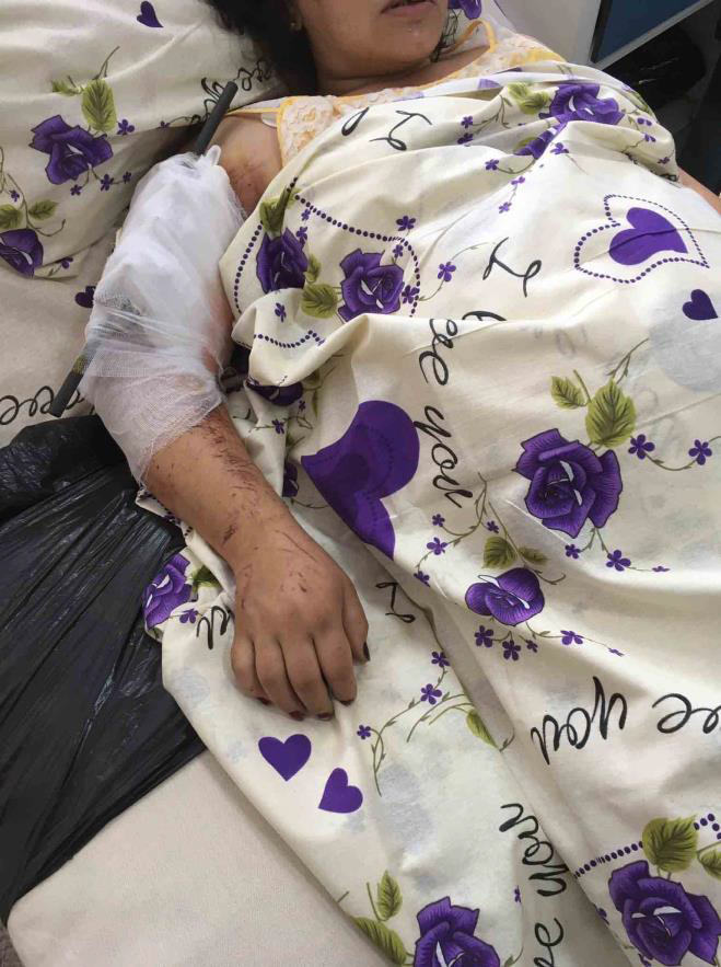 A Pregnant Woman Injured by Azerbaijan in Mataghis Village