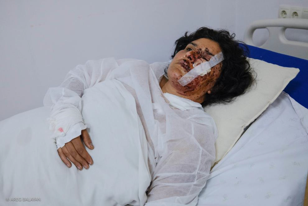 A Woman Injured by Azerbaijan in Martakert Town